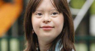 a166056c71 A francesa Mélanie (foto) tem 21 anos e sempre sonhou em apresentar a  previsão do tempo na televisão. Para provar que a Síndrome de Down não  seria uma ...